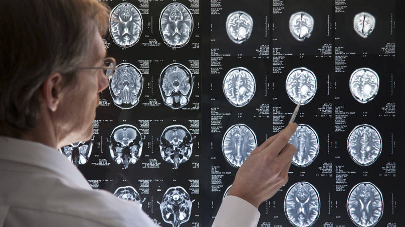 criminal prosecutions and brain scan technology Do they consider or understand brain scan data  question: how are courts  currently using neuroscience evidence in criminal cases  technology and  knowledge improve21 research on the courts' use of neuroscience.