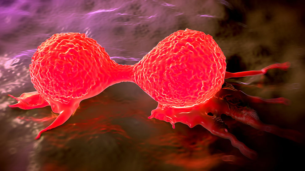 Curing Breast Cancer When How And What S Next
