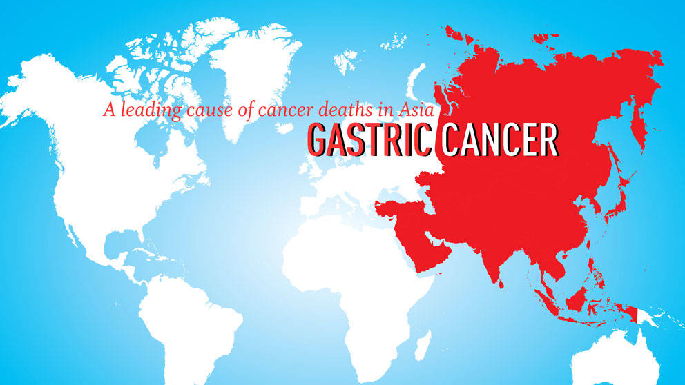 Gastric Cancer is a leading cause of cancer deaths in Asia