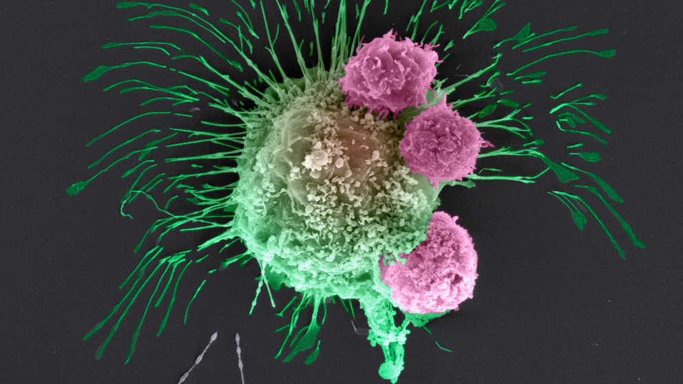 electron microscopy image of breast cancer cell