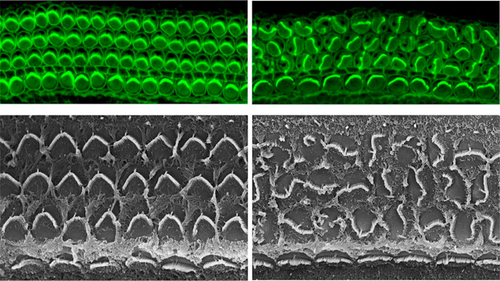 Inner ear hair cell organization in mice with (left) and lacking (right) the protein Daple
