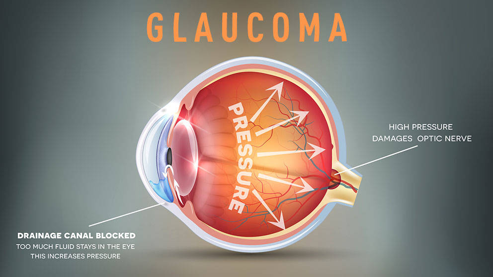 JAX Associate Professor Gareth Howell, Ph.D., is teaming up with the University of Rochester Medical Center's Richard Libby, Ph.D., to determine how the endothelin system contributes to retinal cell death in glaucoma.
